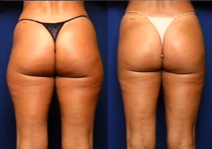 Grazer Liposuction Patient Before and After photo set