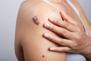 How To Treat Keloid Scars Dr Grazer