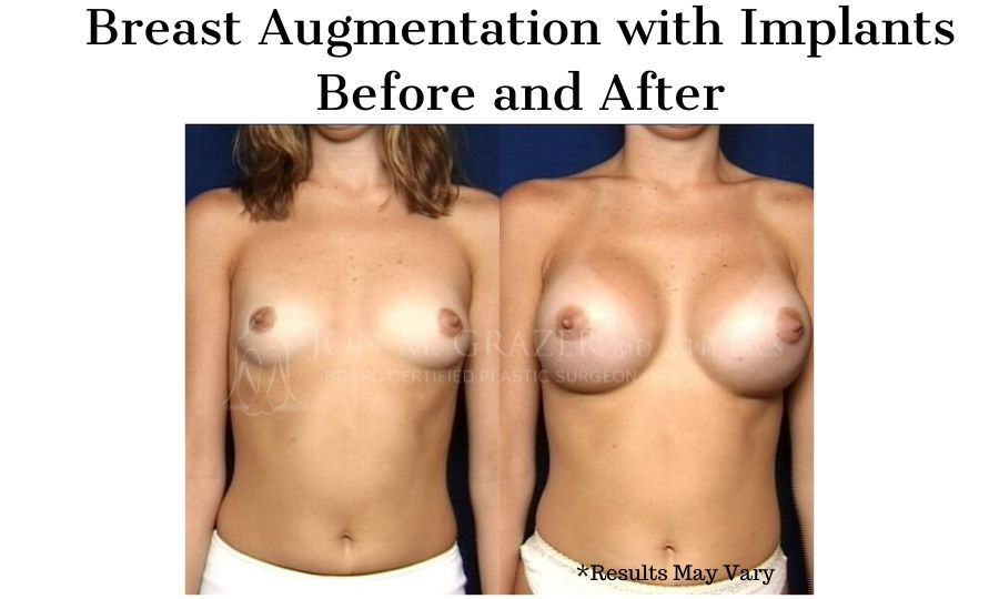 Before and after image showing the results of a breast augmentation with implants performed in Newport Beach, CA.