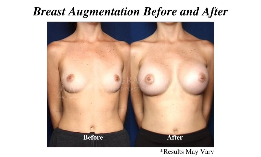 Before and after image showing the results of a breast augmentation performed in Newport Beach.