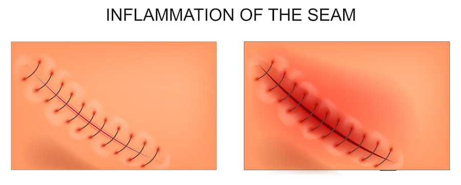 Illustration showing the difference between a healthy incision and inflamed incision.