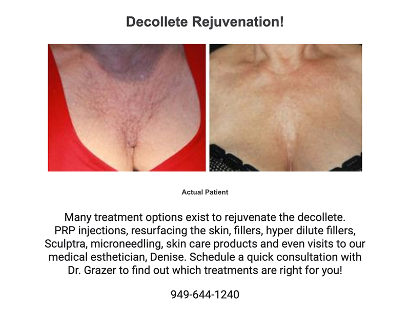 Docollete Rejuvenation. PRP injections. Fillers, sculptra, and Microneedling Products.