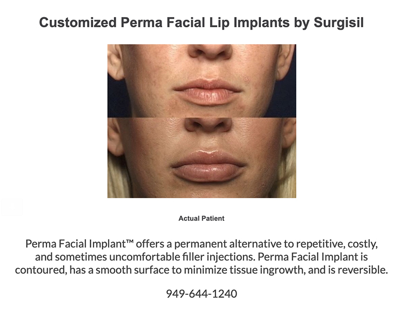 Customized Perma Facial Lip Implants by Sergisil